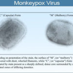 Monkeypox Facts, Symptoms, Causes & Treatment