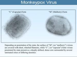 Monkeypox Facts, Symptoms, Causes & Treatment