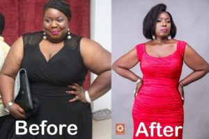 Lepacious Bose Before and After Pictures